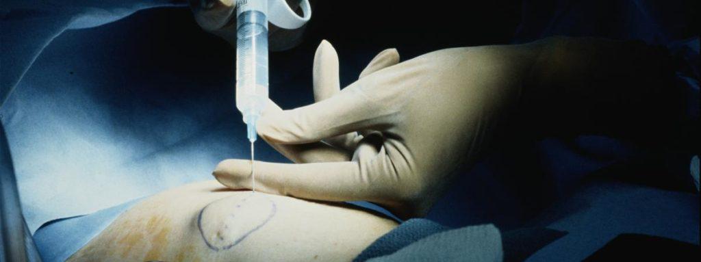 chirurgie-torse-mammectomie-mastectomie-vivre-trans-vt-1