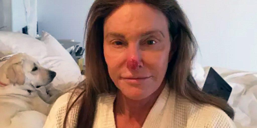 caitlyn-jenner-skin-cancer-1521643410